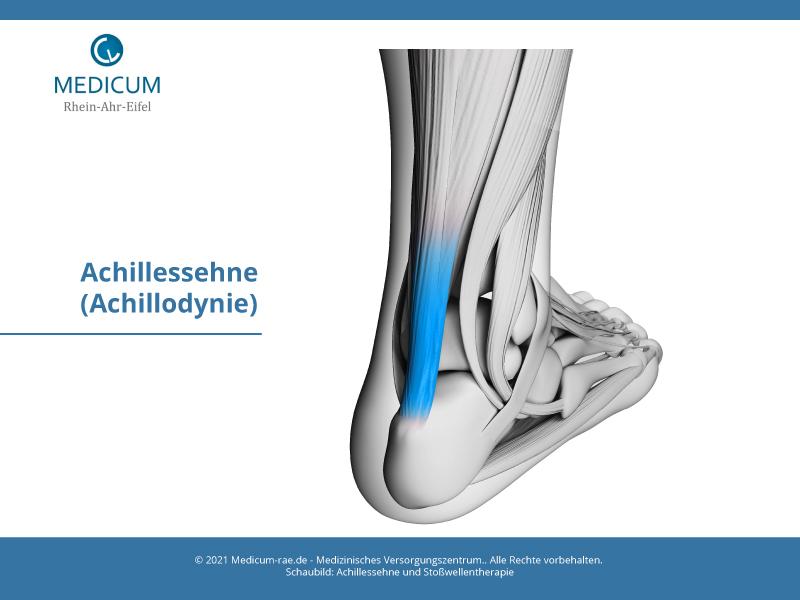 Stosswellentherapie Achillessehne